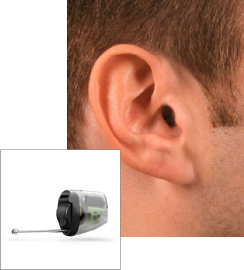 IIC style hearing aid in ear